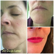 What Causes Wrinkles and how NeriumAD Can help