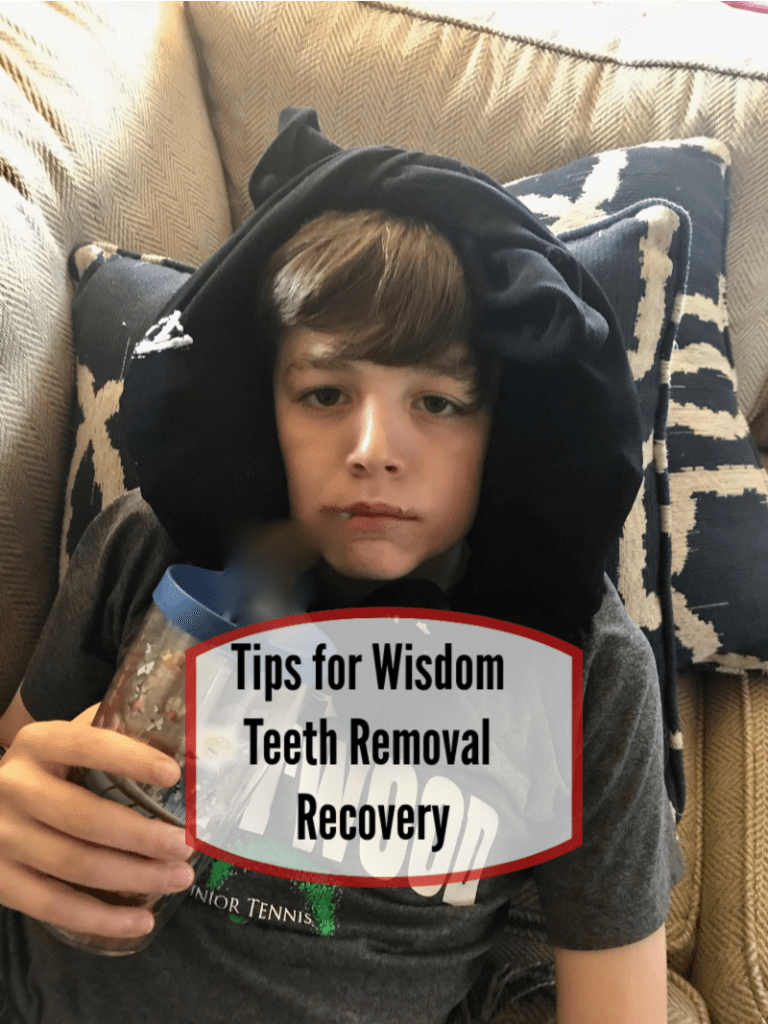 Tips for Wisdom Teeth Removal Recovery